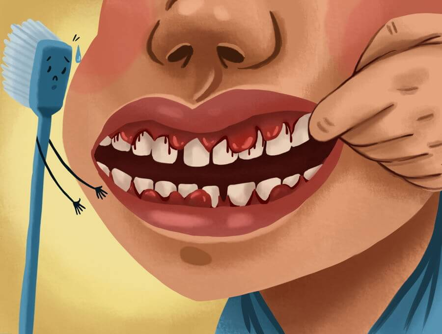 Foods And Drinks That Wreck Your Teeth And Gums
