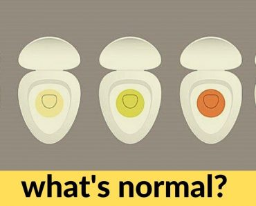 What The Color of Your Pee Says About You?
