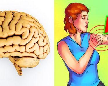stroke signs in women